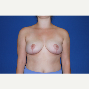 18-24 year old man treated with Breast Reduction after 3769671