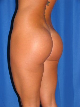 Buttock Augmentation after 1254466