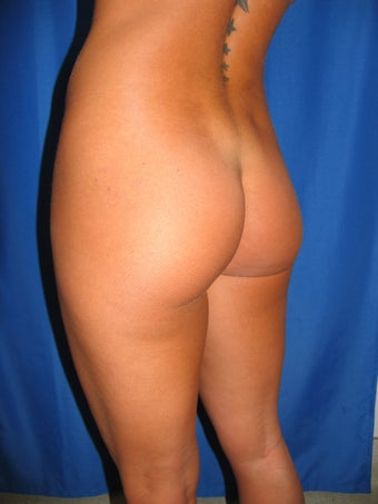 Buttock Augmentation before 1254466