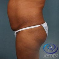 45-54 year old woman treated with Liposuction 1821152