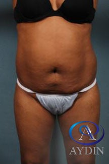 45-54 year old woman treated with Liposuction before 1821152