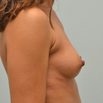 Breast Augmentation with 335cc shaped implants on 5'1, 95 pound patient. before 3176055