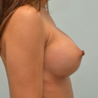 Breast Augmentation with 335cc shaped implants on 5'1, 95 pound patient. after 3176055