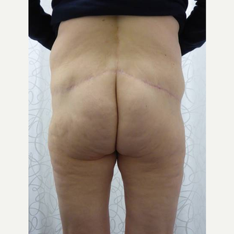 45-54 year old woman treated with Body Lift after 3419928