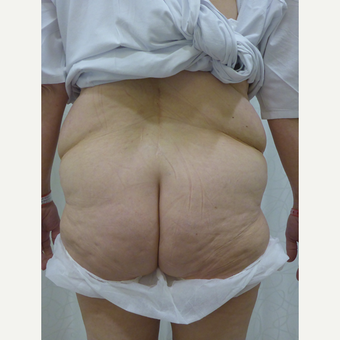 45-54 year old woman treated with Body Lift before 3419928
