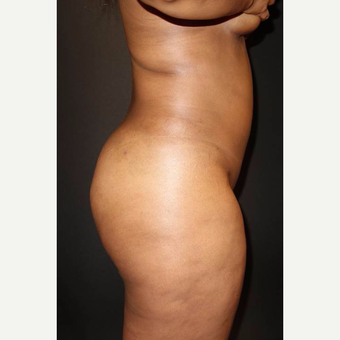 25-34 year old woman treated with Brazilian Butt Lift after 3014076