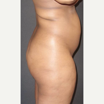 25-34 year old woman treated with Brazilian Butt Lift before 3014076