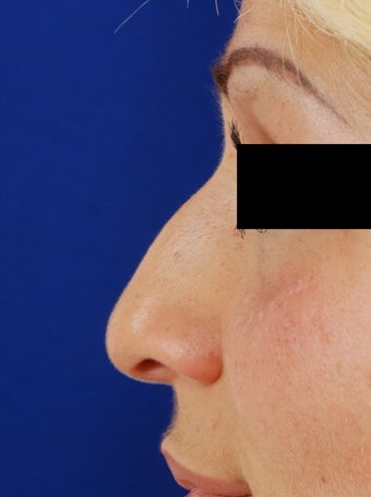 20's female for rhinoplasty before 1096758