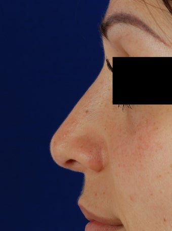 20's female for rhinoplasty after 1096758