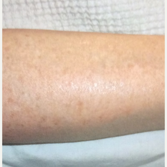 35-44 year old woman treated with IPL