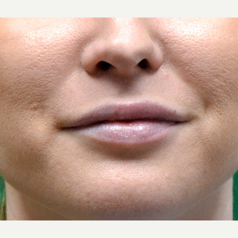 25-34 year old woman treated with Skin Rejuvenation