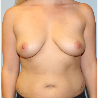 25-34 year old woman treated with Breast Augmentation before 3214216
