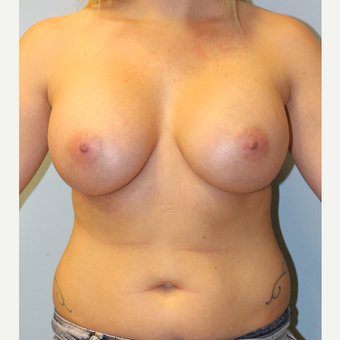 25-34 year old woman treated with Breast Augmentation after 3214216