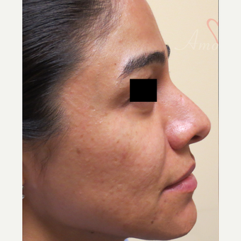 25-34 year old woman treated with Fractional Laser before 3375025