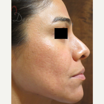 25-34 year old woman treated with Fractional Laser after 3375025