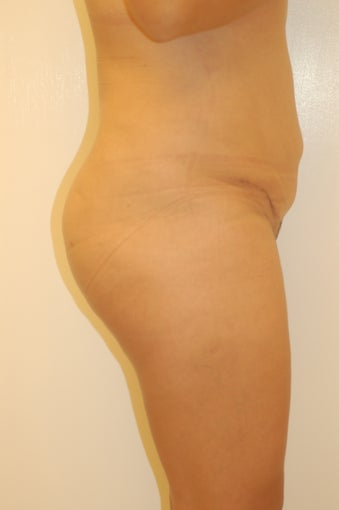 Buttock Enhancement after 905648