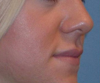 25-34 year old woman treated with Lip Augmentation after 3251842
