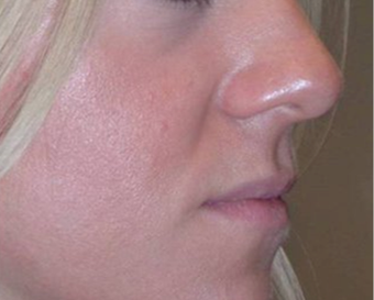 25-34 year old woman treated with Lip Augmentation before 3251842