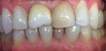 35-44 year old man treated with Porcelain Veneers before 3379430