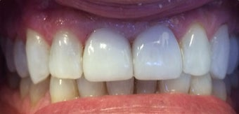 35-44 year old man treated with Porcelain Veneers after 3379430