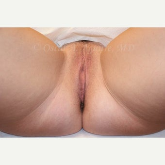 38 year old woman treated with Anal Tag Excision and Vaginoplasty after 2520710