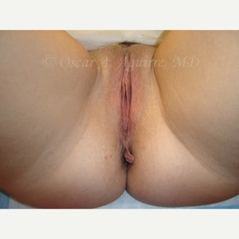 38 year old woman treated with Anal Tag Excision and Vaginoplasty before 2520710