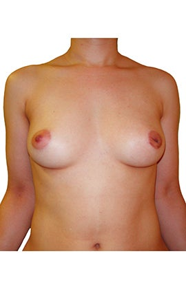 Breast reconstruction following bilateral mastectomy before 416794