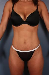 Mommy Makeover, Tummy Tuck before 1359104
