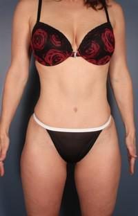 Mommy Makeover, Tummy Tuck after 1359104