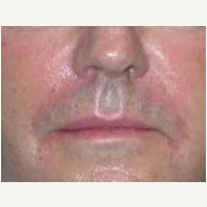 45-54 year old man treated with Juvederm after 3377701