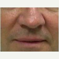 45-54 year old man treated with Juvederm before 3377701