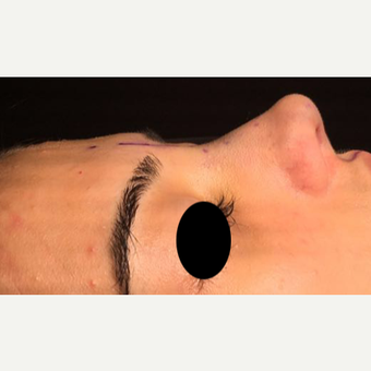 25-34 year old woman treated with Rhinoplasty after 3211272