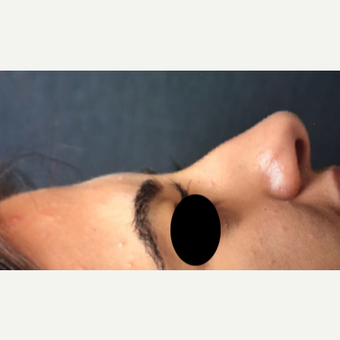 25-34 year old woman treated with Rhinoplasty before 3211272