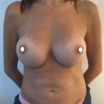 25-34 year old woman treated with Breast Augmentation after 3575005