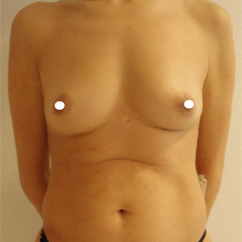 25-34 year old woman treated with Breast Augmentation before 3575005