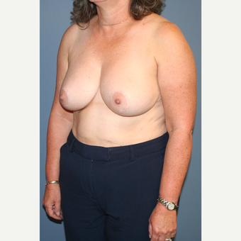 45-54 year old woman treated with Breast Reduction after 3454014