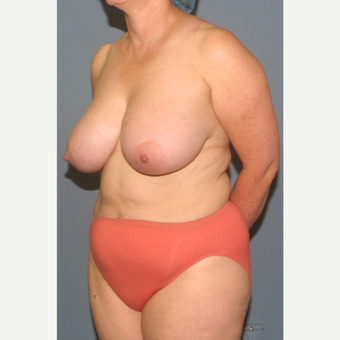 45-54 year old woman treated with Breast Reduction before 3454014