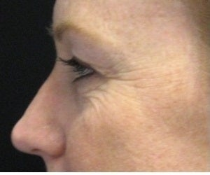 Fraxel CO2 repair laser resurfacing for wrinkles around the eyes