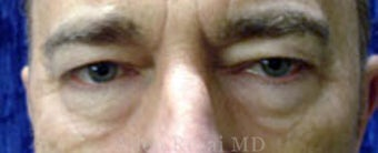 Upper & Lower Blepharoplasty before 2258122