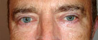 Upper & Lower Blepharoplasty after 2258122