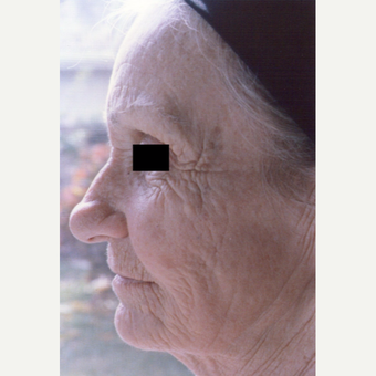75 and up year old woman treated with Chemical Peel before 3543278
