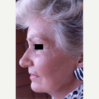 75 and up year old woman treated with Chemical Peel after 3543278