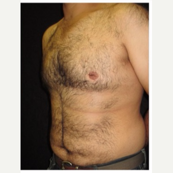 25-34 year old man treated with Male Breast Reduction after 3185997
