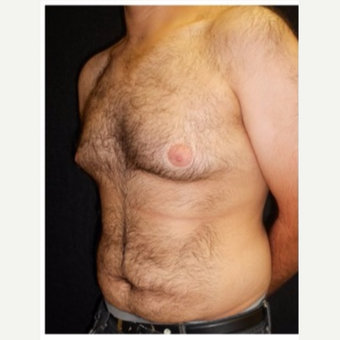 25-34 year old man treated with Male Breast Reduction before 3185997
