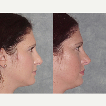 25-34 year old woman treated with Rhinoplasty after 3224132
