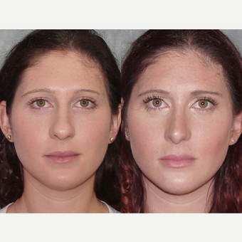 25-34 year old woman treated with Rhinoplasty before 3224132