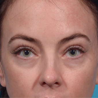 35-44 year old woman treated with Radiesse to lower eyelid/cheek junction