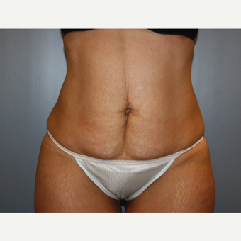 35-44 year old woman treated with Tummy Tuck before 3683085
