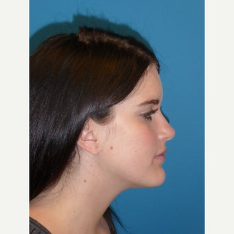17 year old female Jaw Reduction after 2181859