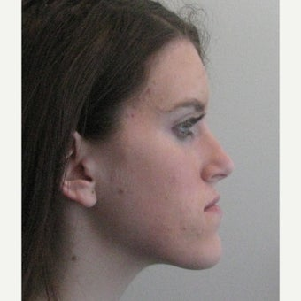 17 year old female Jaw Reduction before 2181859